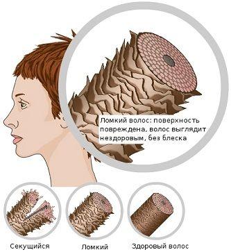 Ефективні засоби від ламкості волосся