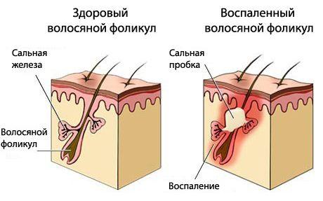 Методи лікування себореї народними засобами