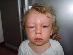 Про що може свідчити набряк очей у дитини?