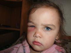 Причини набряку очей у дитини
