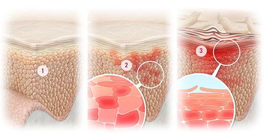 Засоби від жирної шкіри голови і випадання волосся